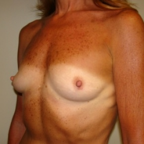 Before Photo - Breast Augmentation - Case #2805 - Lateral View