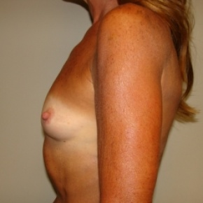 Before Photo - Breast Augmentation - Case #2805 - Posterior View