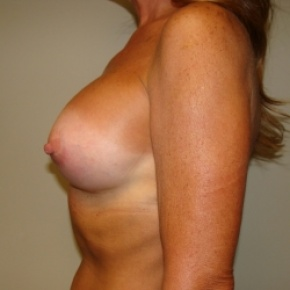 After Photo - Breast Augmentation - Case #2805 - Posterior View