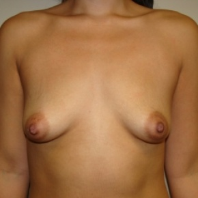 Before Photo - Breast Augmentation - Case #2808 - Frontal View