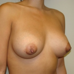 After Photo - Breast Augmentation - Case #2808 - Oblique View