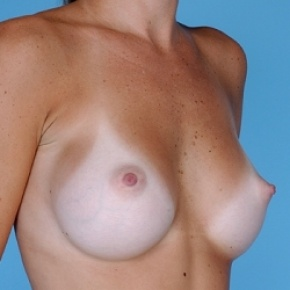 After Photo - Breast Augmentation - Case #2595 - Silicone  - Oblique View