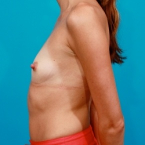 Before Photo - Breast Augmentation - Case #2477 - Silicone Breast Implants - Lateral View