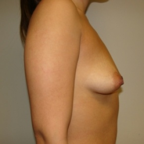Before Photo - Breast Augmentation - Case #2808 - Posterior Oblique View