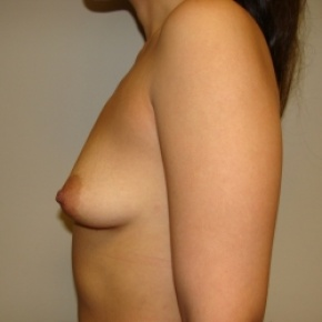 Before Photo - Breast Augmentation - Case #2808 - Posterior View