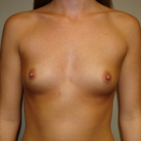 Before Photo - Breast Augmentation - Case #2817 - Frontal View