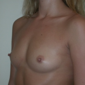 Before Photo - Breast Augmentation - Case #2933 - Oblique View