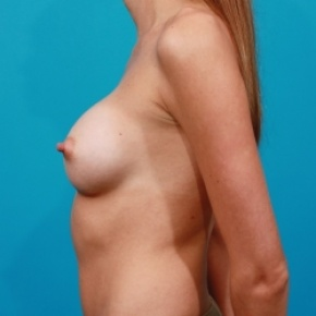 After Photo - Breast Augmentation - Case #2477 - Silicone Breast Implants - Lateral View