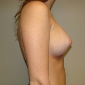 After Photo - Breast Augmentation - Case #2817 - Posterior Oblique View