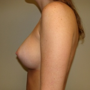 After Photo - Breast Augmentation - Case #2817 - Posterior View
