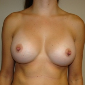 After Photo - Breast Augmentation - Case #2839 - Frontal View