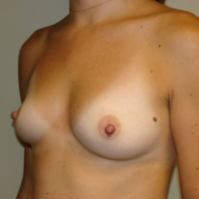 Before Photo - Breast Augmentation - Case #2839 - Lateral View