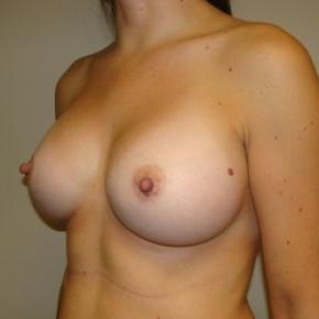After Photo - Breast Augmentation - Case #2839 - Lateral View