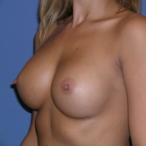 After Photo - Breast Augmentation - Case #2933 - Oblique View