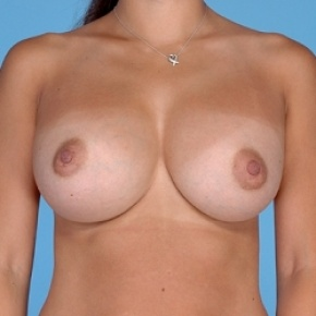 After Photo - Breast Augmentation - Case #2596 - Silicone  - Frontal View