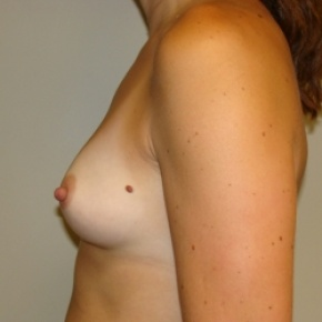 Before Photo - Breast Augmentation - Case #2839 - Posterior View