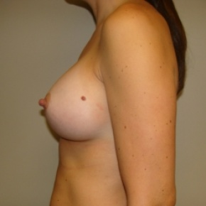 After Photo - Breast Augmentation - Case #2839 - Posterior View