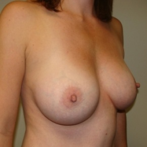 After Photo - Breast Augmentation - Case #2847 - Oblique View