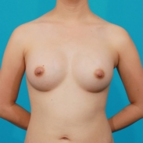 After Photo - Breast Augmentation - Case #2478 - Silicone Breast Augmentation - Frontal View