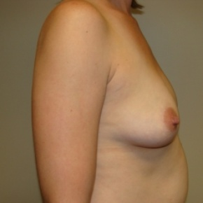 Before Photo - Breast Augmentation - Case #2847 - Posterior Oblique View