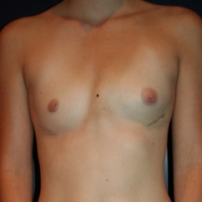 Before Photo - Breast Augmentation - Case #2869 - Natural Proportional Breast Augmentation - Frontal View