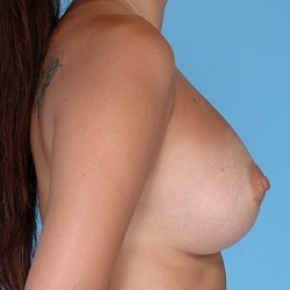 After Photo - Breast Augmentation - Case #2596 - Silicone  - Oblique View