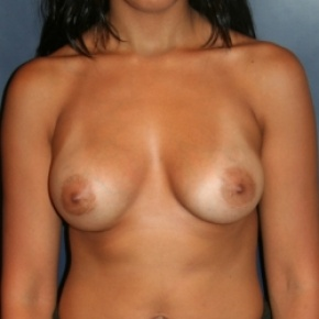 After Photo - Breast Augmentation - Case #2871 - Natural Proportional Breast Augmentation - Frontal View
