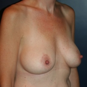 After Photo - Breast Augmentation - Case #2873 - Natural Proportional Breast Augmentation - Oblique View