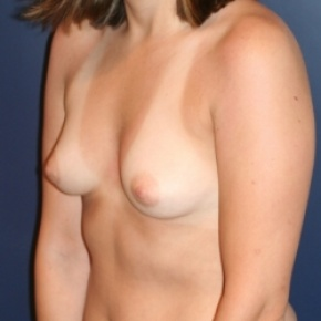 Before Photo - Breast Augmentation - Case #2874 - Natural Proportional Breast Augmentation - Oblique View