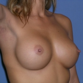 After Photo - Breast Augmentation - Case #2933 - Posterior Oblique View