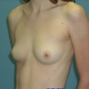Before Photo - Breast Augmentation - Case #2878 - Bilateral Breast Augmentation - Oblique View
