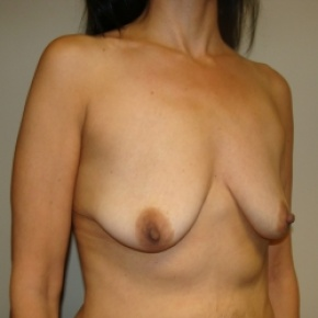 Before Photo - Breast Augmentation - Case #2898 - Oblique View