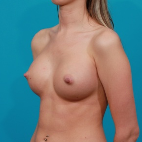 After Photo - Breast Augmentation - Case #2901 - Silicone Breast Implants - Oblique View