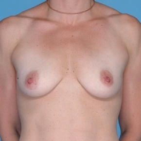 Before Photo - Breast Augmentation - Case #2597 - Silicone  - Frontal View