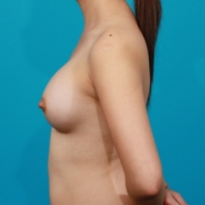After Photo - Breast Augmentation - Case #2478 - Silicone Breast Augmentation - Lateral View