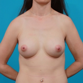 After Photo - Breast Augmentation - Case #2905 - Silicone Gel Implants - Frontal View