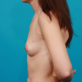 Before Photo - Breast Augmentation - Case #2905 - Silicone Gel Implants - Lateral View