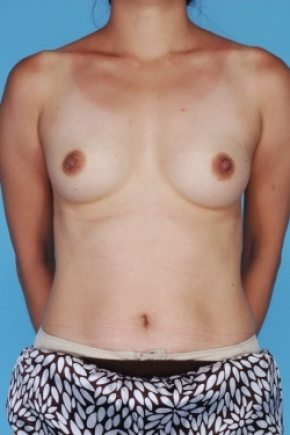 Before Photo - Breast Augmentation - Case #2906 - Frontal View