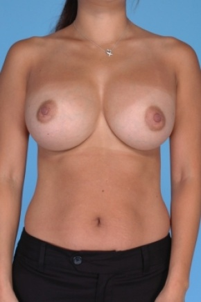 After Photo - Breast Augmentation - Case #2906 - Frontal View