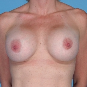After Photo - Breast Augmentation - Case #2597 - Silicone  - Frontal View