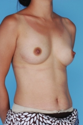Before Photo - Breast Augmentation - Case #2906 - Oblique View