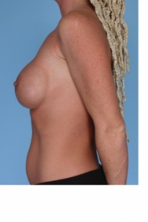 Before Photo - Breast Augmentation - Case #2907 - Breast Implant Replacement - Lateral View