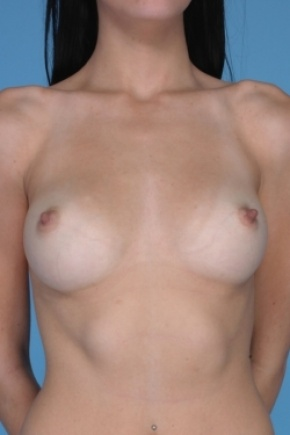 Before Photo - Breast Augmentation - Case #2908 - Frontal View