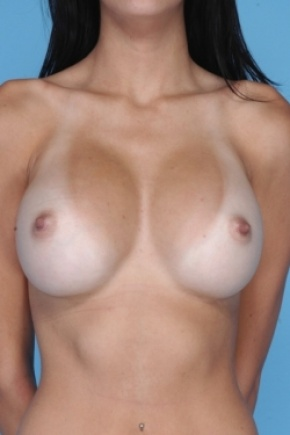 After Photo - Breast Augmentation - Case #2908 - Frontal View