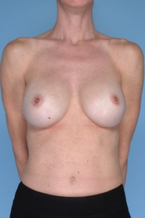 After Photo - Breast Augmentation - Case #2909 - Frontal View
