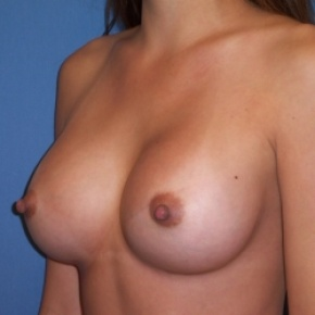 After Photo - Breast Augmentation - Case #2934 - Oblique View