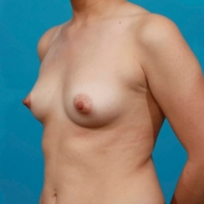 Before Photo - Breast Augmentation - Case #2479 - Silicone Breast Augmentation - Oblique View