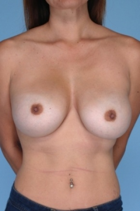After Photo - Breast Augmentation - Case #2917 - Reaugmentation of the breast - Frontal View