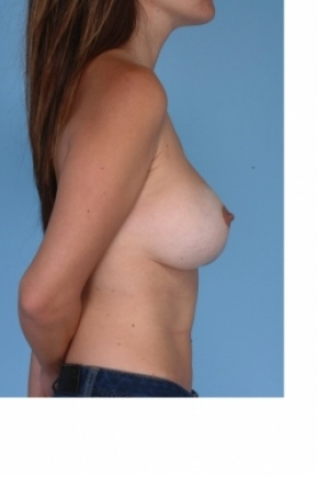 After Photo - Breast Augmentation - Case #2917 - Reaugmentation of the breast - Lateral View