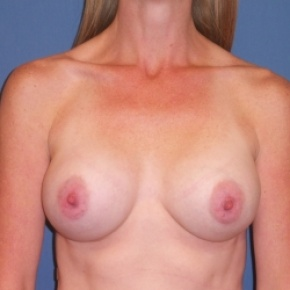 After Photo - Breast Augmentation - Case #2936 - Frontal View